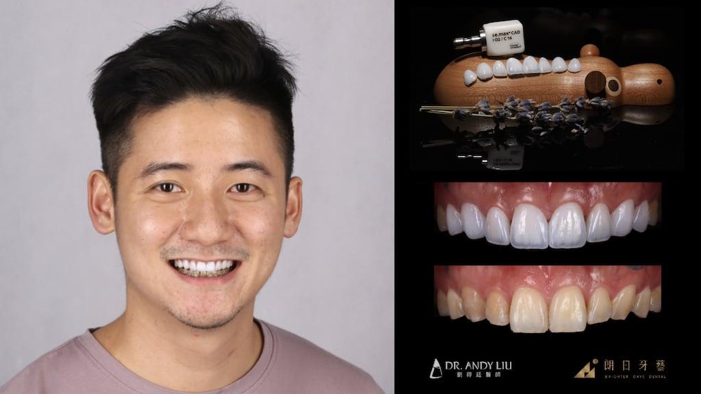 全瓷冠-陶瓷貼片-台中牙齒美白推薦朗日牙醫-劉得廷醫師美白貼片案例-型男一日修復牙齒黃