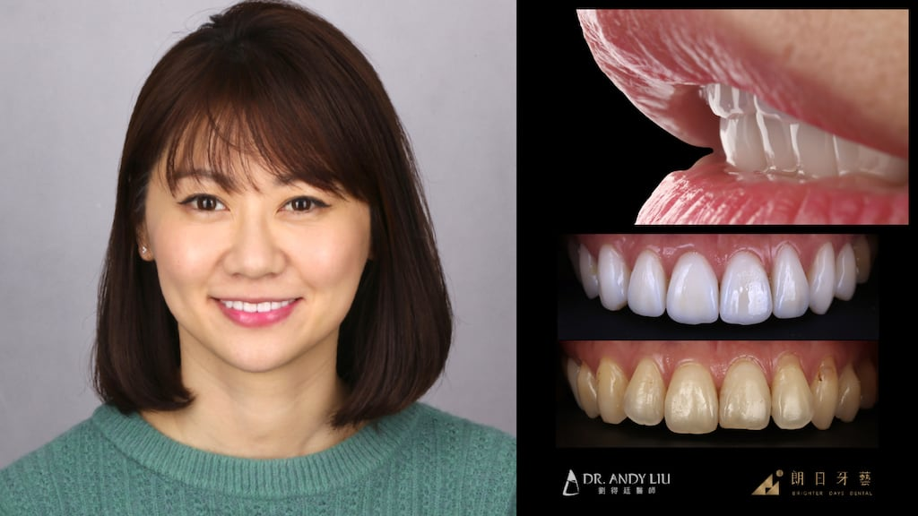 全瓷冠-陶瓷貼片-台中牙齒美白推薦朗日牙醫-劉得廷醫師美白貼片案例-林小姐牙齒微矯正