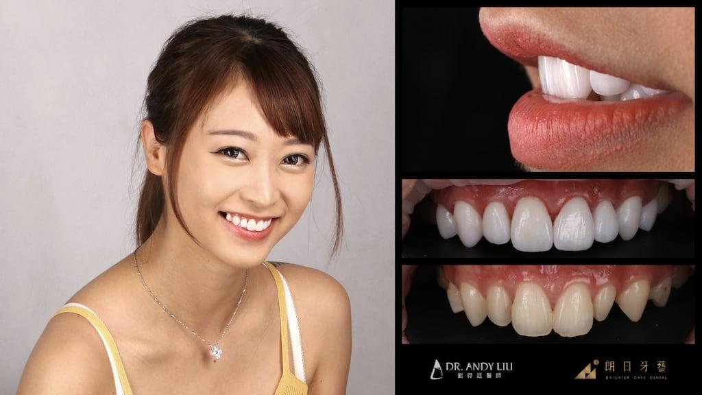 全瓷冠-陶瓷貼片-台中牙齒美白推薦朗日牙醫-劉得廷醫師美白貼片案例-林小姐