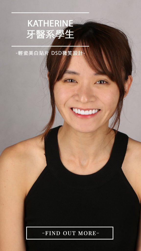陶瓷貼片-全瓷冠-台中-推薦-朗日牙藝-DSD數位微笑設計-牙醫系學生Katherine
