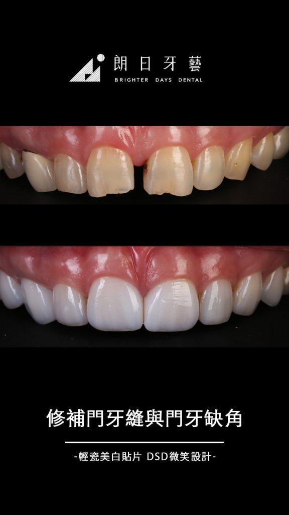 陶瓷貼片-推薦-台中-朗日牙藝-輕瓷美白貼片-門牙縫-門牙缺角