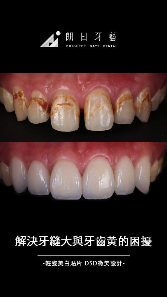 陶瓷貼片-牙縫大-牙齒黃-推薦-台中-朗日牙藝-輕瓷美白貼片-羅先生