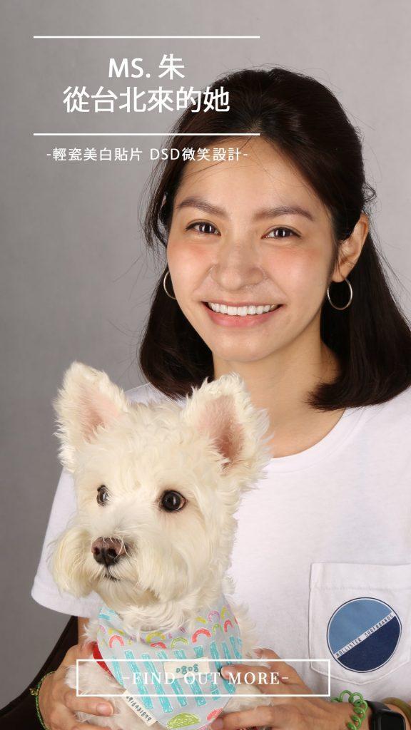 陶瓷貼片-DSD數位微笑設計-推薦-台中-朗日牙藝-全瓷冠-台北朱小姐