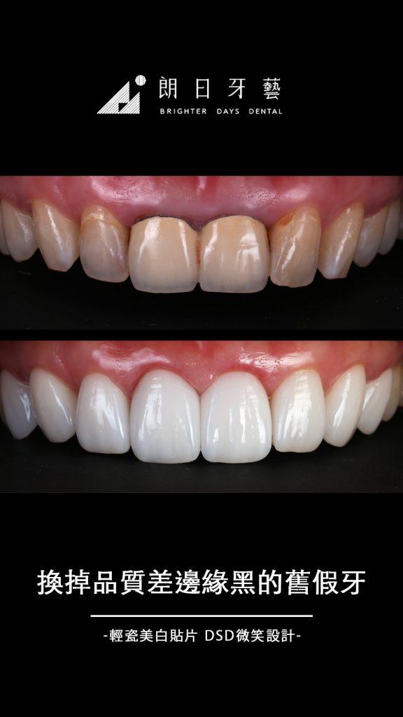 陶瓷貼片-門牙假牙-牙齒黃-推薦-台中朗日牙藝-輕瓷美白貼片-李小姐
