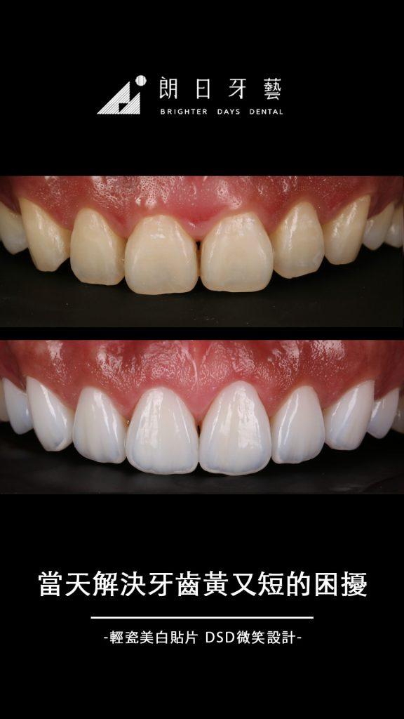 陶瓷貼片-門牙貼片-牙齒黃-門牙短小-推薦-台中-朗日牙藝-輕瓷美白貼片-雲