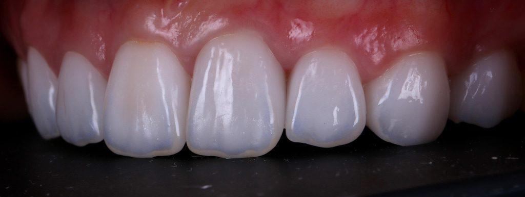 陶瓷貼片-推薦-台中-朗日牙藝-DSD數位微笑設計-全瓷冠-台北MS朱-牙齒美白貼片療程後-左側面照