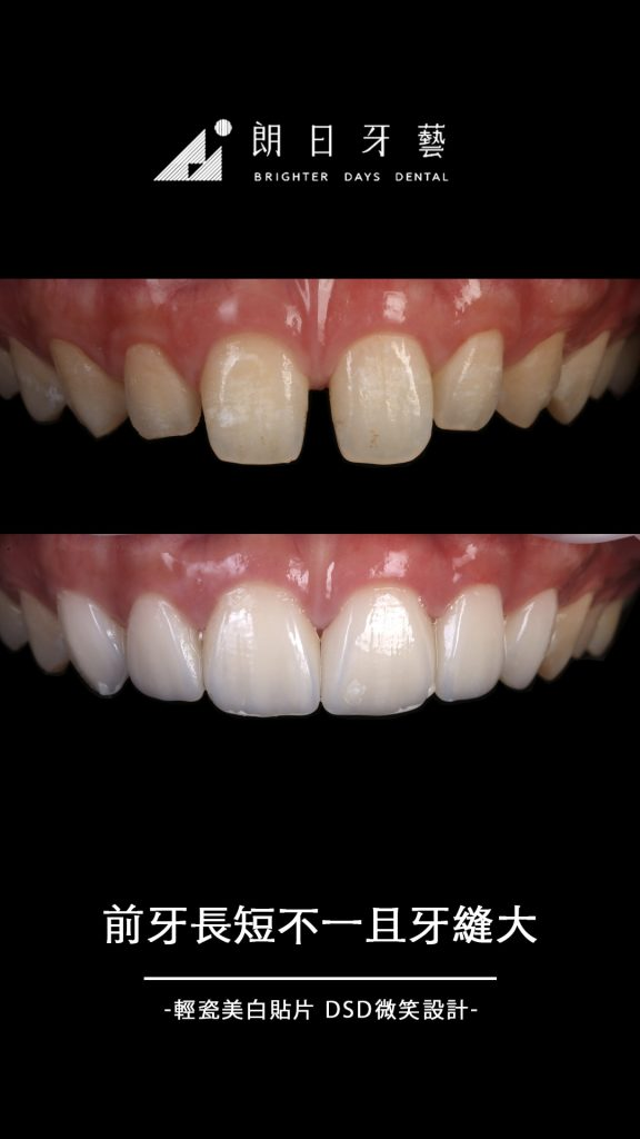 陶瓷貼片-門牙齒列不整-牙縫大-牙齒黃-牙齒整形推薦-台中朗日牙藝-輕瓷美白貼片-Mr蔡