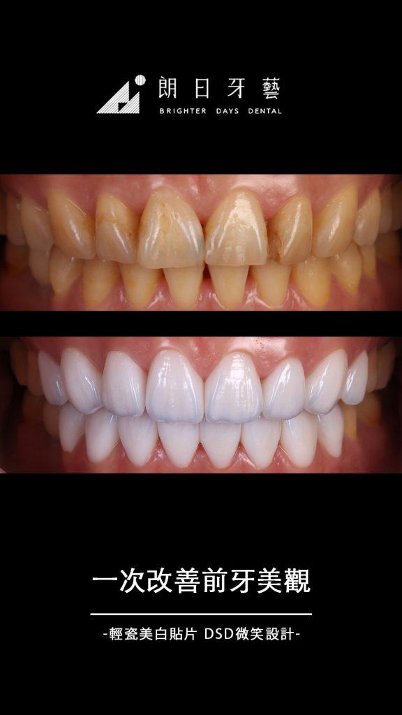 陶瓷貼片案例-一次改善前牙美觀-解決前排牙齒黃-關牙縫-朗日牙藝-輕瓷美白貼片