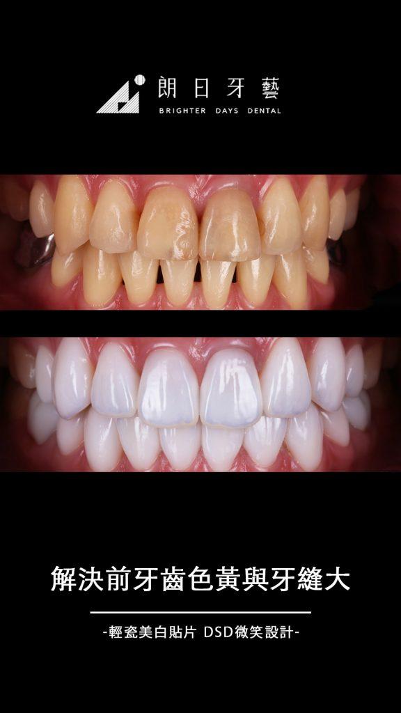 陶瓷貼片案例-牙齒黃-牙縫大-台中-朗日牙藝-輕瓷美白貼片