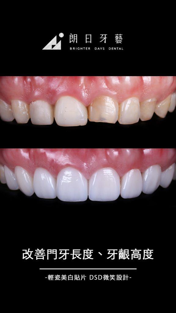 陶瓷貼片案例-門牙缺角-牙齒整形-台中朗日牙藝推薦-輕瓷美白貼片