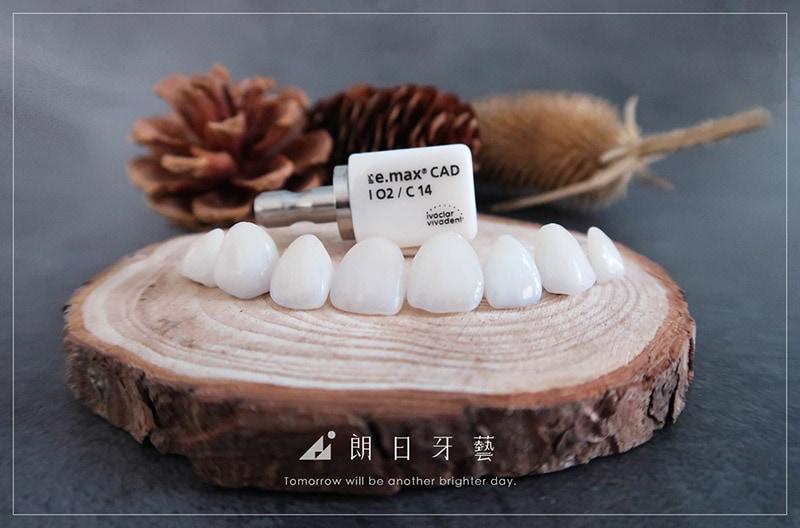 牙齒貼片失敗-陶瓷貼片後悔-瓷牙貼片-副作用-台中陶瓷貼片-朗日牙醫